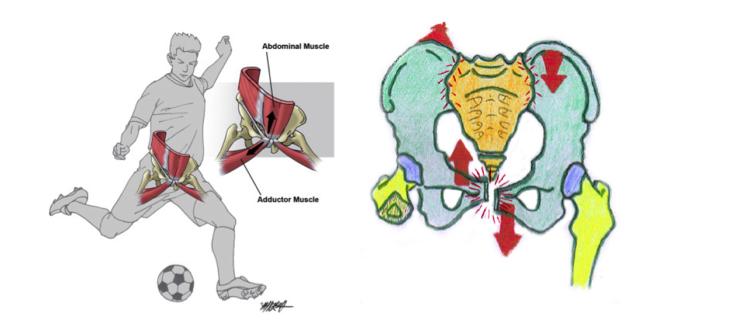 La pubalgie : une pathologie qui touche de nombreux sportifs