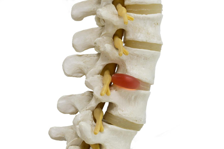 Douleurs-disque-vertebres